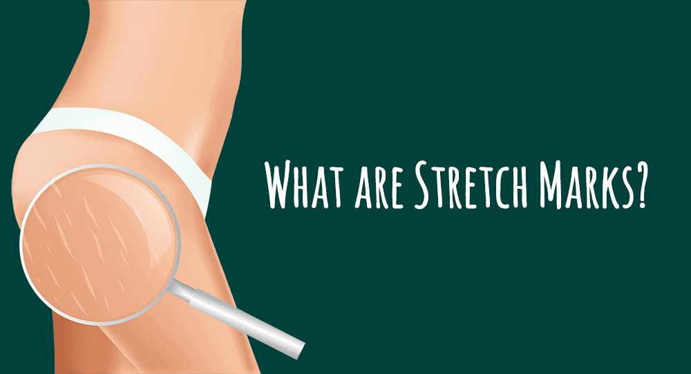 What-are-stretch-marks?